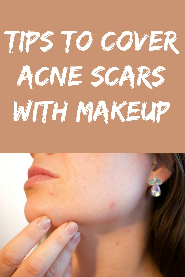 Tips To Cover Acne Scars With Makeup