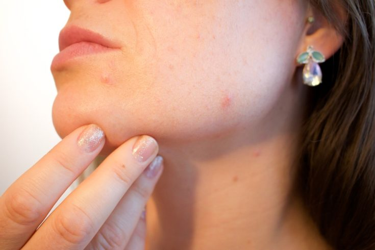 3 Ways To Get Rid Of Blackheads The Right Way