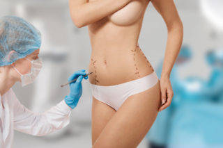 How I Financed My Cosmetic Surgery (And Would Do It Again)