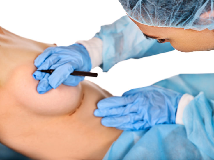 Breast enhancement surgery of body part. Breast augmentation surgery and bare nipples. Doctor makes dotted line on female body close up of hands wearing medical glove.